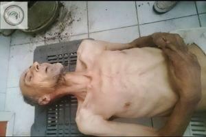 A man in Madaya, Syria